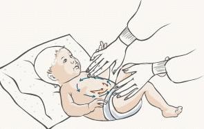 Причины коликов у новорожденных