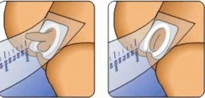 Как сдать анализ мочи у грудничка Справка от фтизиатра Улица Большая Якиманка