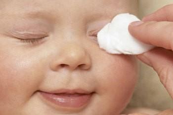 правильный уход за глазками новорожденного
