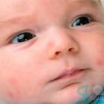 ребенок с симптомами пищевой аллергии