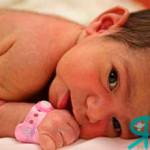 новорожденный с волосиками на теле