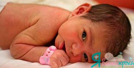 Волосы на теле у новорожденных