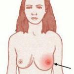 Симптомы мастита при гв
