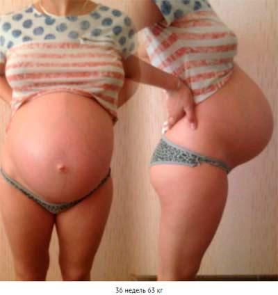 Дискомфорт в грудном отделе