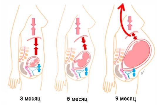 Причина изжога при беременности