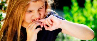 ребенок-грызет-ногти