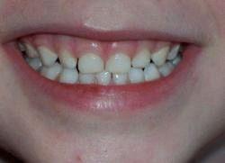 почему ребёнок скрипит зубами