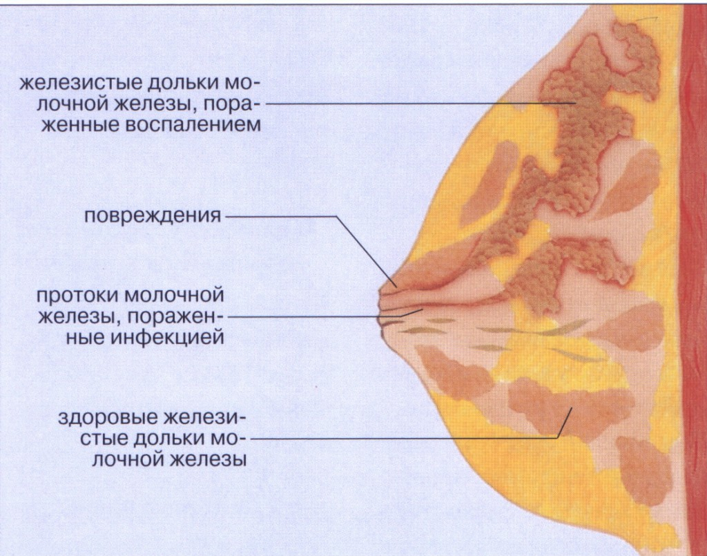 лактостаз груди