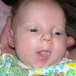 Фото молочницы у новорожденных на языке