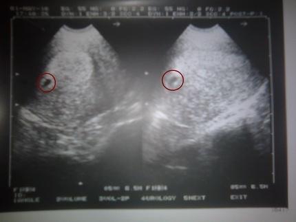 снимок узи на шестой неделе беременности