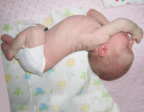 у ребенка фебрильные судороги